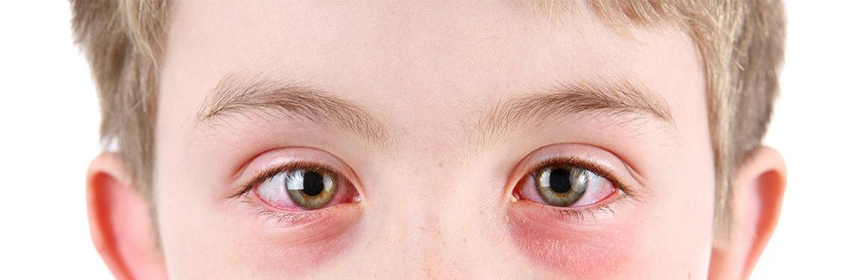 seasonal and perennial allergic conjunctivitis - east london optometry, Skeleton